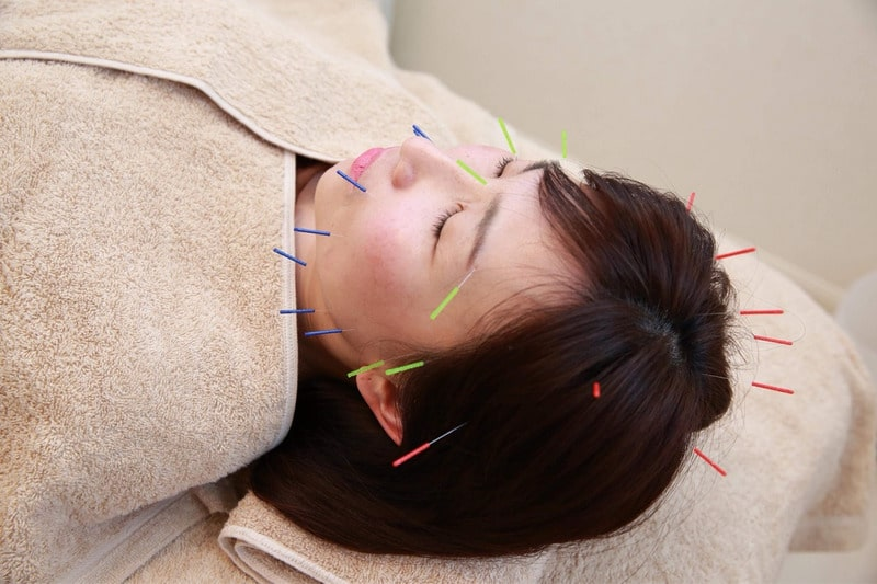 群馬・伊勢崎市の鍼灸整体サロンスピカの美容鍼